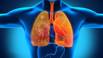 Viêm phổi do vi khuẩn xâm nhập qua da?