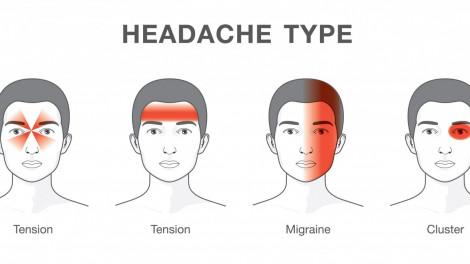 Một loại đau đầu dai dẳng có thể khiến bệnh nhân dễ tự sát