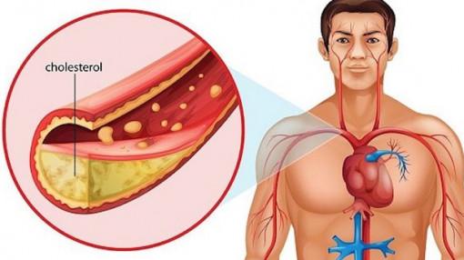 Vì sao người gầy bị máu nhiễm mỡ?