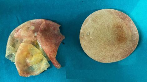 Một phụ nữ bị vỡ túi ngực sau 5 năm phẫu thuật thẩm mỹ