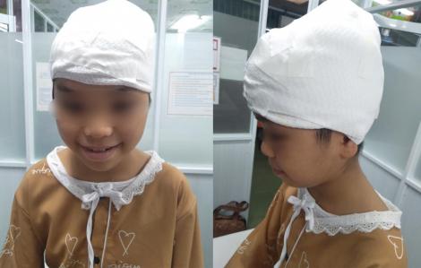 """Phụ mẹ cưa nước đá, bé gái 11 tuổi bị máy """"lột"""" hết da đầu"""