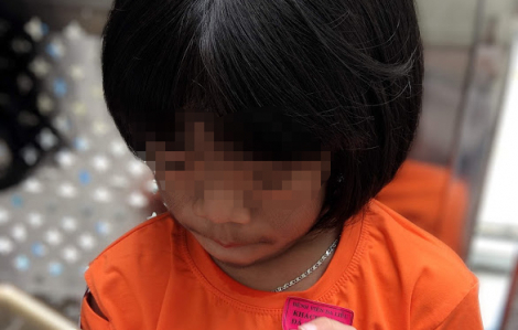 Phát hiện một bé gái mắc bệnh Cantú hiếm gặp trên thế giới, lông mọc rậm rạp khắp cơ thể