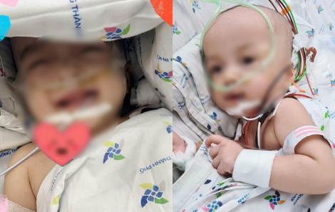 Hai bé gái song sinh Trúc Nhi - Diệu Nhi đã cai máy thở sau 12 ngày mổ tách dính