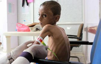 Nạn đói, thất học đe dọa hàng trăm triệu trẻ em