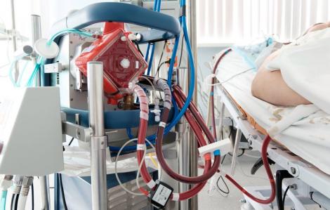 Việt Nam lên kế hoạch nhập thêm máy ECMO để điều trị cho bệnh nhân nặng