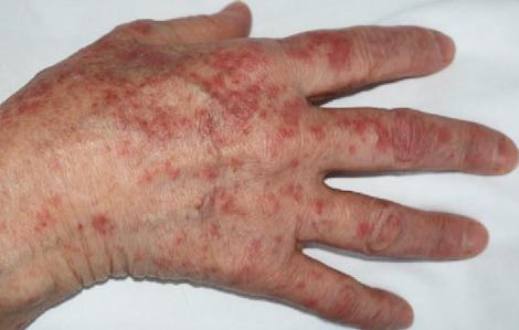 Những biểu hiện trên da hay gặp ở bệnh nhân mắc COVID-19