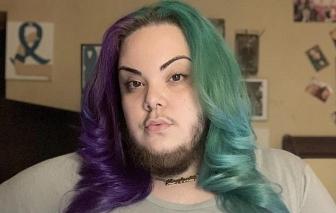 Cô gái 27 tuổi thách thức định kiến: Để râu chỉ là đặc quyền dành riêng cho cánh mày râu
