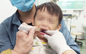 Ôm con đi chữa tự kỷ hóa ra bé bị dính thắng lưỡi