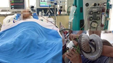 Người đàn ông mang rắn hổ mang đến bệnh viện cấp cứu: Trao đổi oxy ở phổi cải thiện