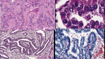 Cụ ông ở Quảng Ninh phát hiện cùng lúc 2 bệnh ung thư khi đi xét nghiệm
