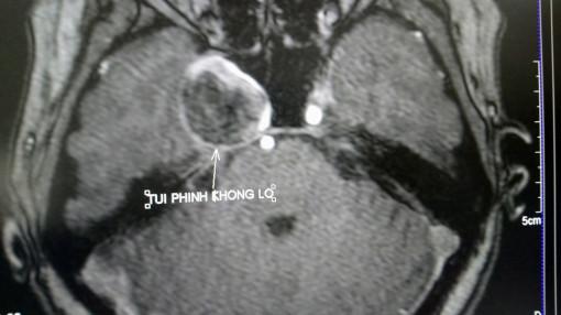 Điều trị phình động mạch não khổng lồ không cần mổ