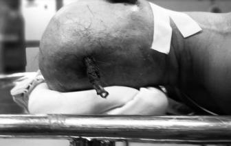Bờ kè lòi thanh sắt, người đàn ông bị đâm xuyên sọ