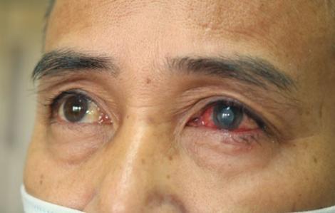 Tưởng mắt đau do bụi bẩn, bệnh nhân suýt mù mắt do trực khuẩn