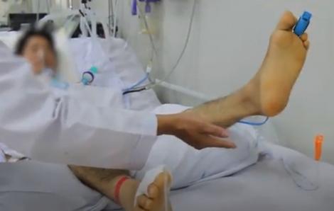 Hơn 1 tháng điều trị, bệnh nhân ngộ độc pate Minh Chay đã há được miệng, cử động tay chân