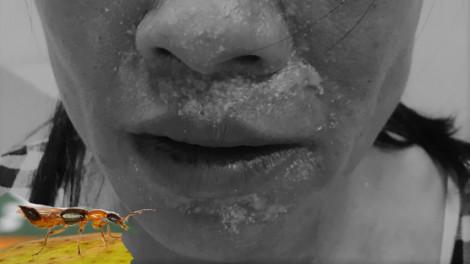 Khắp mặt mưng mủ xanh trắng vì kiến ba khoang đốt