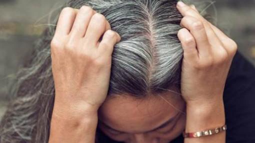 Tóc bạc sớm dùng thuốc tái sắc tố có hiệu quả?