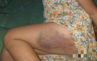 Một học sinh lớp 3 bị cô giáo đánh bầm đùi