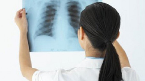 Chụp X-quang khi vừa thụ thai có nguy hiểm?