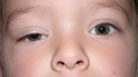 Trẻ sụp mi có cần phẫu thuật ngay?