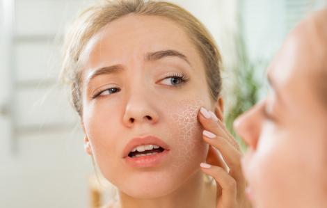 Làm gì khi da bong tróc vì hanh khô?