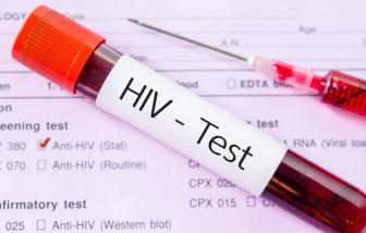 Trẻ từ 15 tuổi có thể tự đi xét nghiệm HIV/AIDS