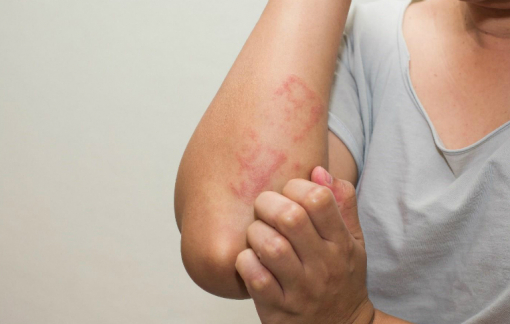 Clip: Tại sao da bị ngứa?