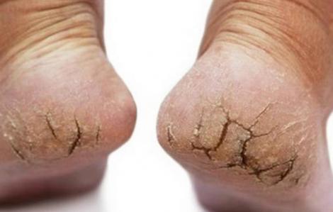 Cách trị, dưỡng gót chân bị nứt nẻ vào mùa đông