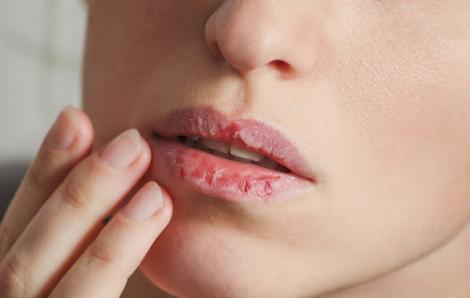 Tại sao môi luôn khô và nứt nẻ?