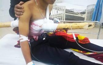 Thanh niên 16 tuổi bị cây gỗ đâm xuyên người