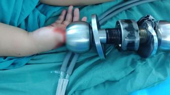 Bé trai 3 tuổi bị kẹt ngón tay vào ổ khóa