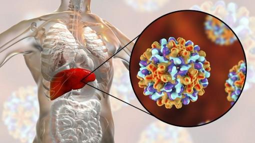 Làm gì để tránh viêm gan siêu vi C tiến triển thành ung thư?