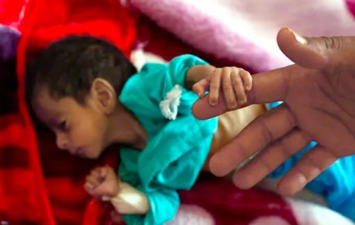 Cắt viện trợ làm tăng số trẻ tử vong