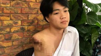 Nam sinh 16 tuổi bị máy tiện cuốn mất tay trong giờ học thực hành