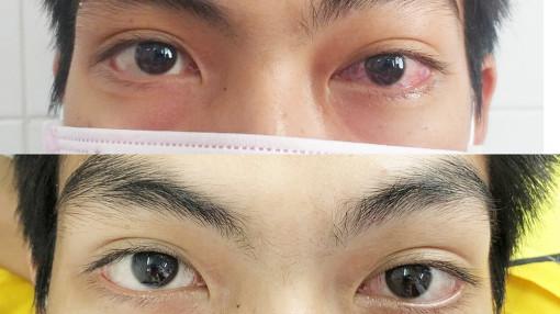 Mắt trái nổi vân đỏ hình trăng khuyết giữa tròng