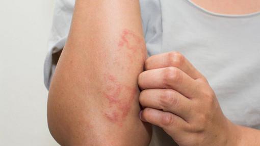 Căng thẳng, stress làm phù tay chân?