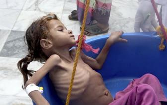 Mỹ và phương Tây cắt viện trợ nhân đạo, hàng triệu trẻ em Yemen kêu cứu