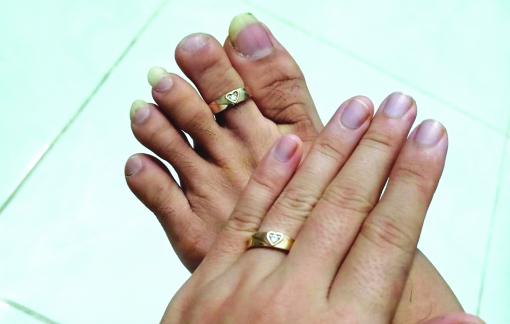 Người đeo nhẫn cưới vào... ngón chân!