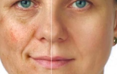 Mẹo giảm sạm da một cách dễ dàng