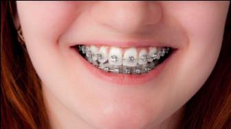 Bị hô và cười hở lợi niềng răng có hết?