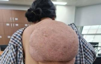 """Người phụ nữ """"gánh mai rùa"""" khổng lồ trên lưng"""
