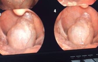 Em bé 7 tuổi phải mổ ngồi để lấy khối u hiếm gặp