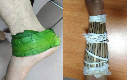 Nhập viện do đến bệnh viện trị gãy xương, trật khớp...  rồi quay về thầy lang đắp thuốc