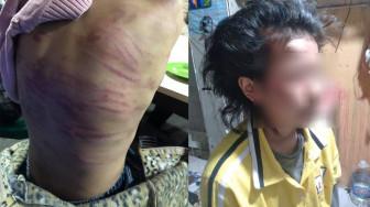Cháu bé 12 tuổi nghi bị mẹ ruột bạo hành, người tình của mẹ xâm hại tình dục