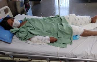 Lạng Sơn: Chồng uống rượu về đánh đập, đổ xăng thiêu sống vợ