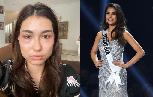 Hoa hậu Indonesia kiện bệnh viện thẩm mỹ vì mặt trông như bị đánh