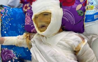 Nghệ An: Vợ bị tình nhân của chồng ghen ngược, hắt nguyên ca hóa chất vào mặt
