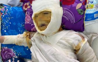 Nghệ An: Khởi tố người phụ nữ hắt cả ca axit vào mặt vợ người tình