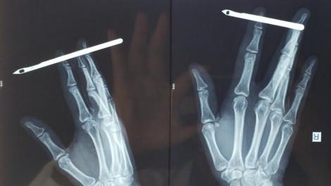 Rùng mình cây kim 12cm đâm xuyên ngón tay cô gái trẻ