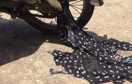 Vướng áo chống nắng, người phụ nữ bị gãy tay