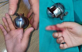Bác sĩ phải dùng cưa máy cắt ổ khóa cứu ngón tay cho bé trai